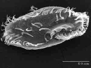 One species of ciliate as seen under the microscope
